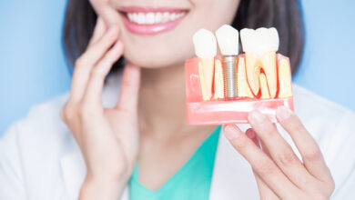dentures vs. implants